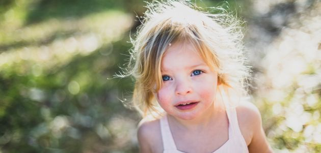 Atopijski dermatitis najčešća je dječja kožna bolest